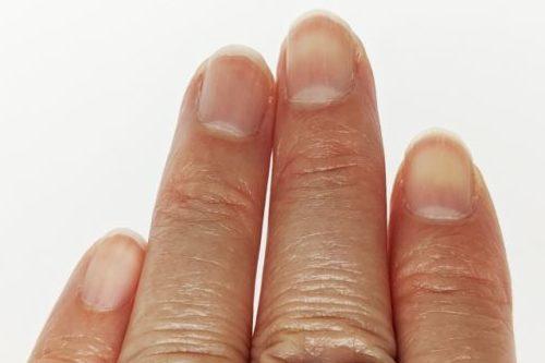 女性の指(爪)